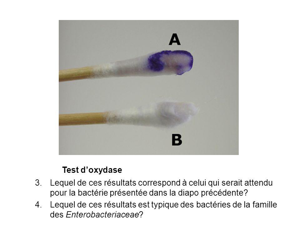 Test d'oxydase Lequel de ces résultats correspond à celui qui serait attendu pour la bactérie présentée dans la diapo précédente
