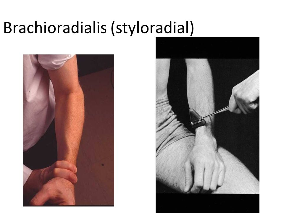 Brachioradialis (styloradial)