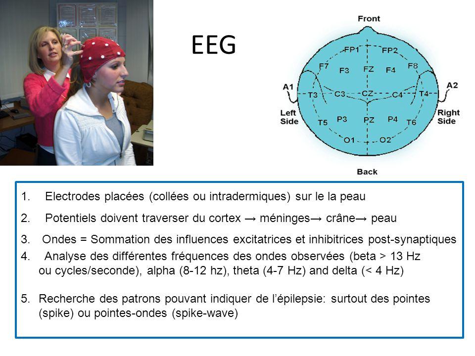 EEG Electrodes placées (collées ou intradermiques) sur le la peau