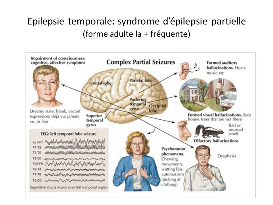 Epilepsie temporale: syndrome d'épilepsie partielle (forme adulte la + fréquente)