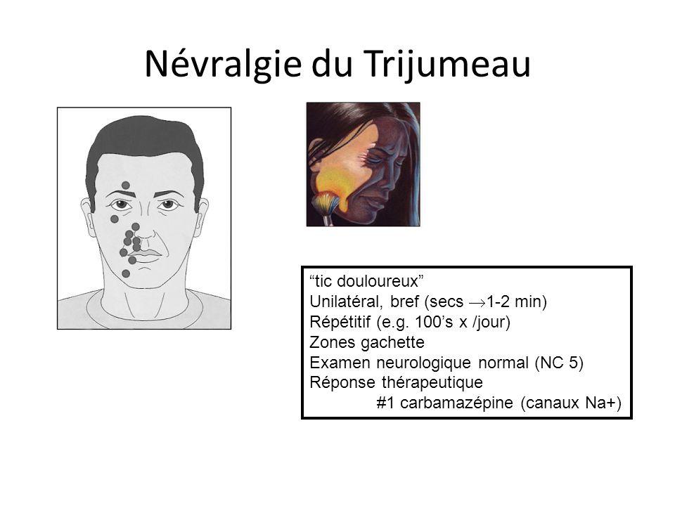 Névralgie du Trijumeau
