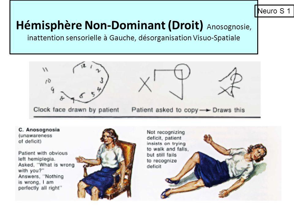 Hémisphère Non-Dominant (Droit) Anosognosie, inattention sensorielle à Gauche, désorganisation Visuo-Spatiale