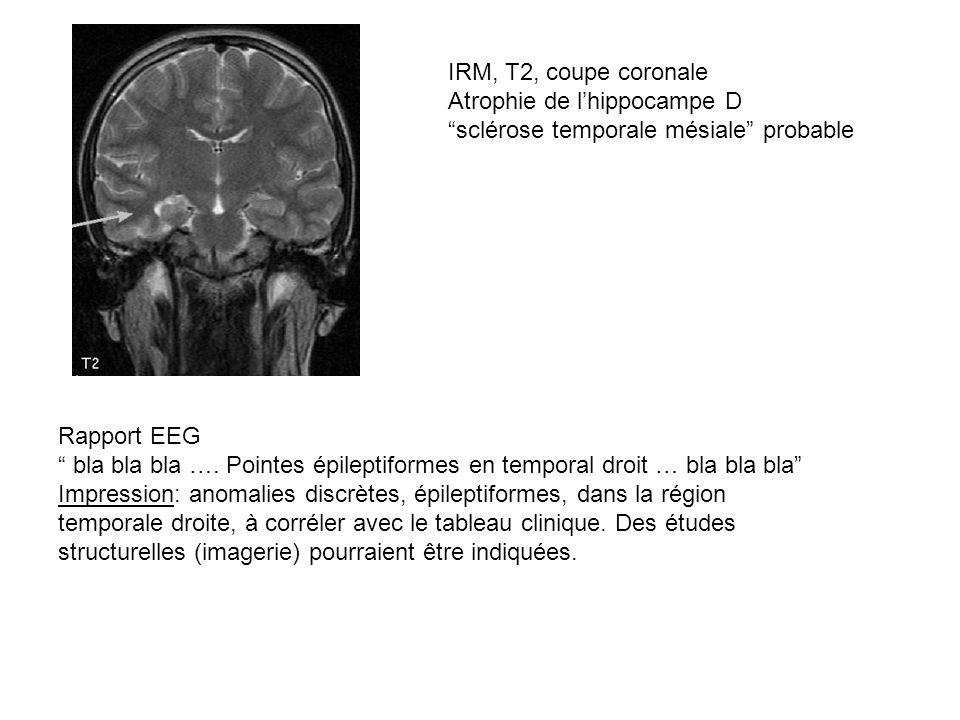 IRM, T2, coupe coronale Atrophie de l'hippocampe D. sclérose temporale mésiale probable. Rapport EEG.