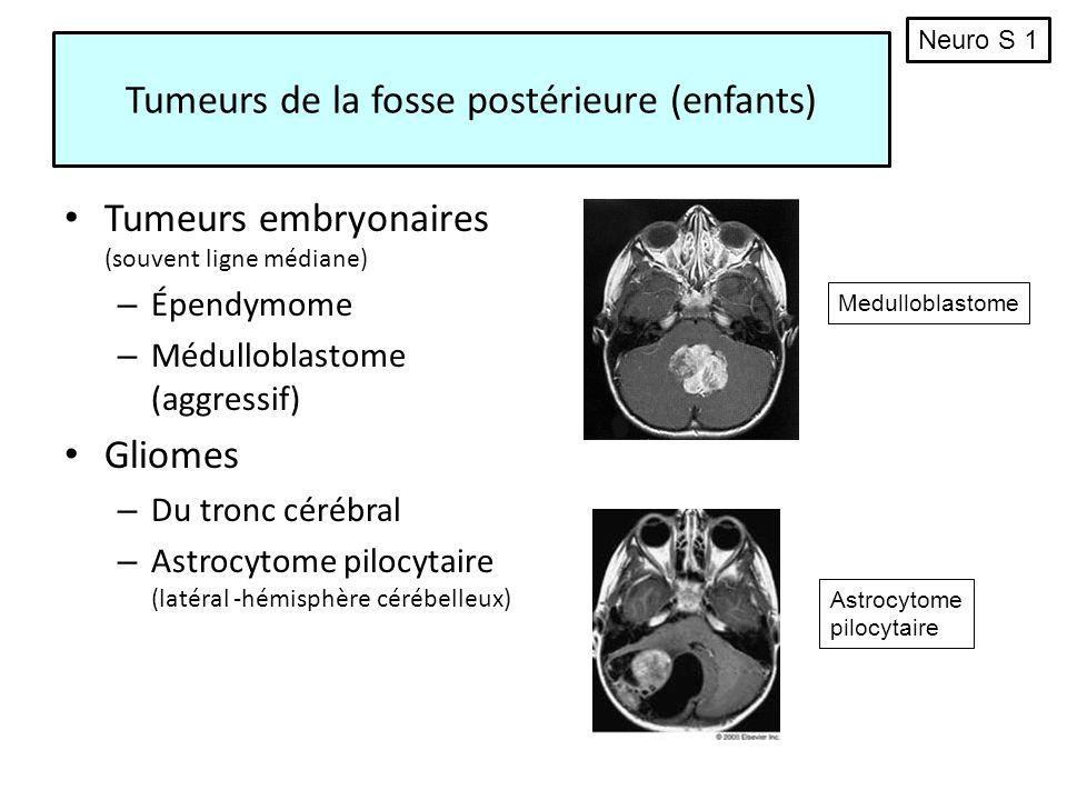 Tumeurs de la fosse postérieure (enfants)