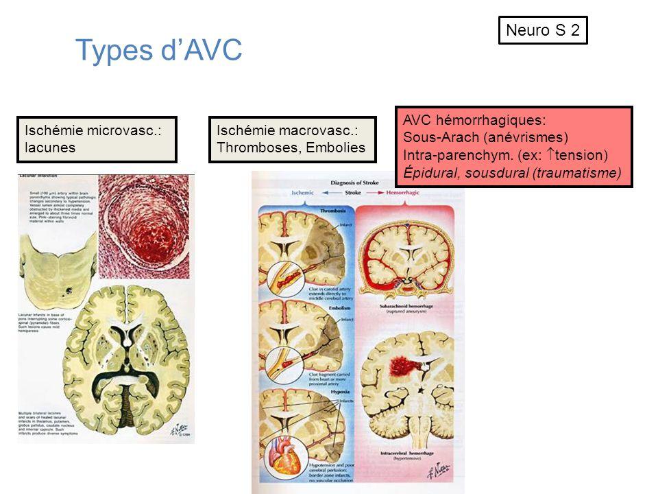 Types d'AVC Neuro S 2 AVC hémorrhagiques: Sous-Arach (anévrismes)
