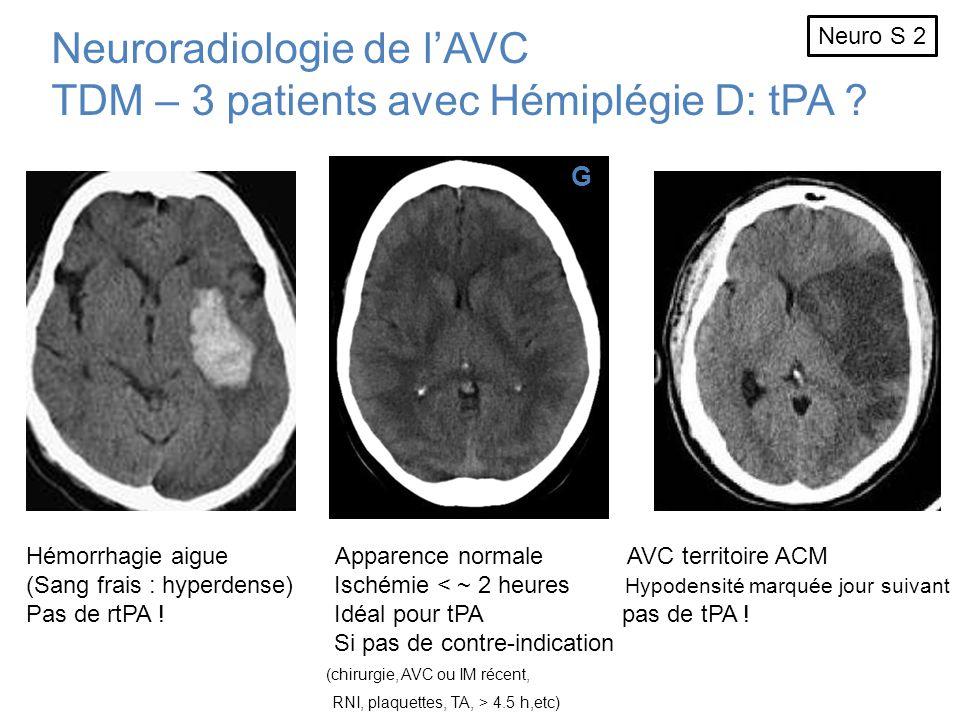 Neuroradiologie de l'AVC TDM – 3 patients avec Hémiplégie D: tPA