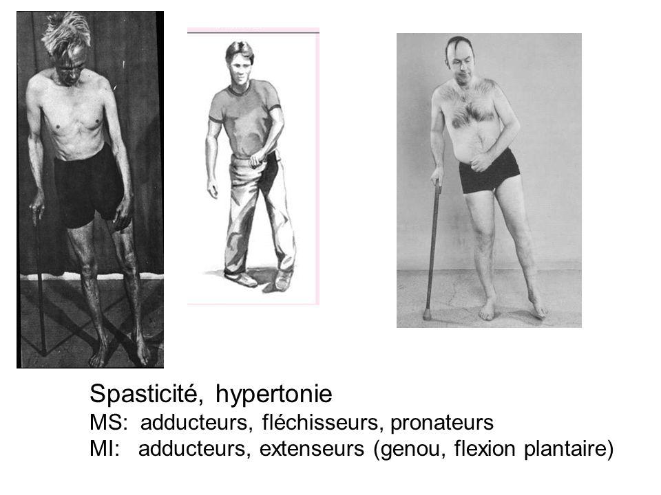 Spasticité, hypertonie