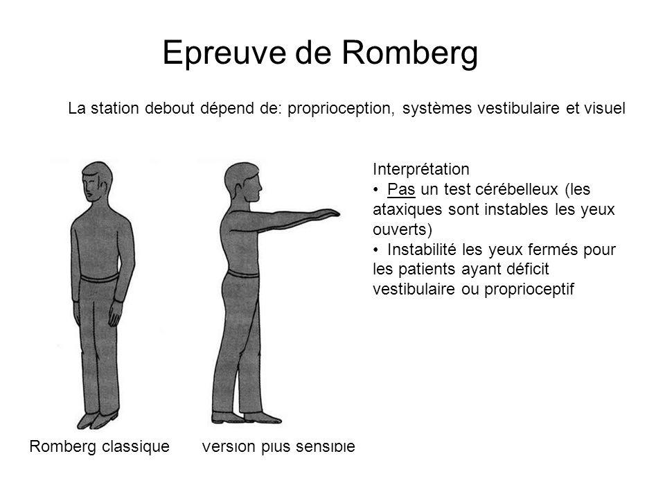 Epreuve de Romberg La station debout dépend de: proprioception, systèmes vestibulaire et visuel. Interprétation.