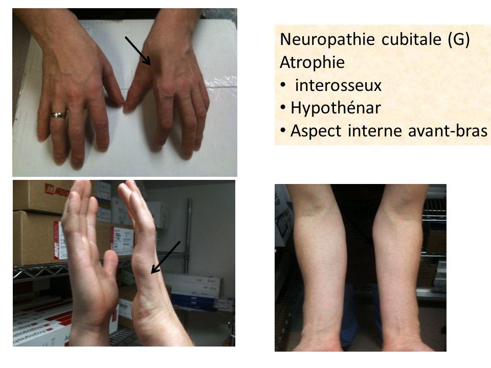 Neuropathie cubitale (G)