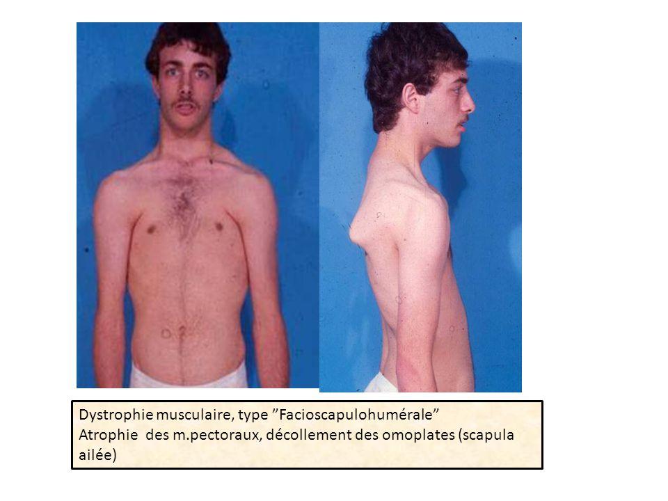 Dystrophie musculaire, type Facioscapulohumérale