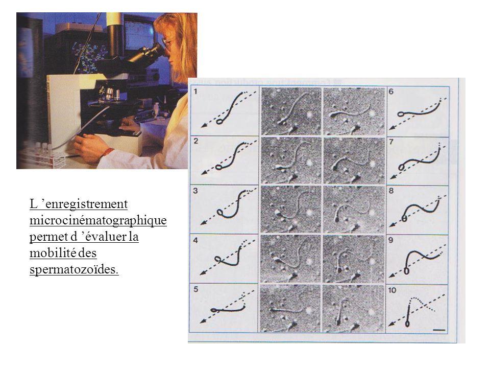 L 'enregistrement microcinématographique permet d 'évaluer la mobilité des spermatozoïdes.