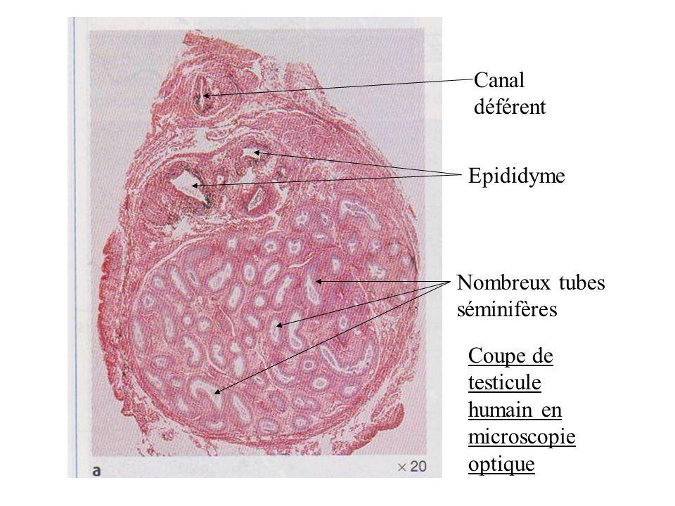 Canal déférent Epididyme. Nombreux tubes séminifères.