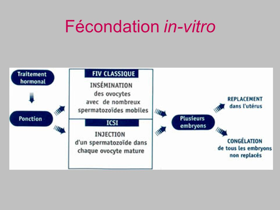 Fécondation in-vitro