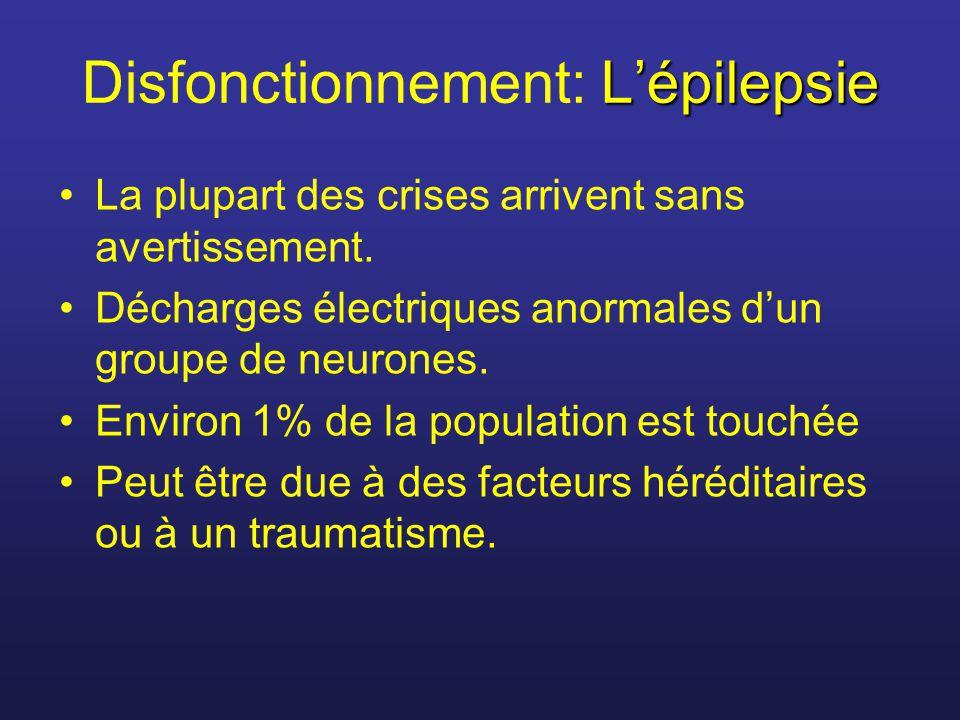 Disfonctionnement: L'épilepsie