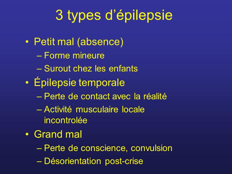 3 types d'épilepsie Petit mal (absence) Épilepsie temporale Grand mal