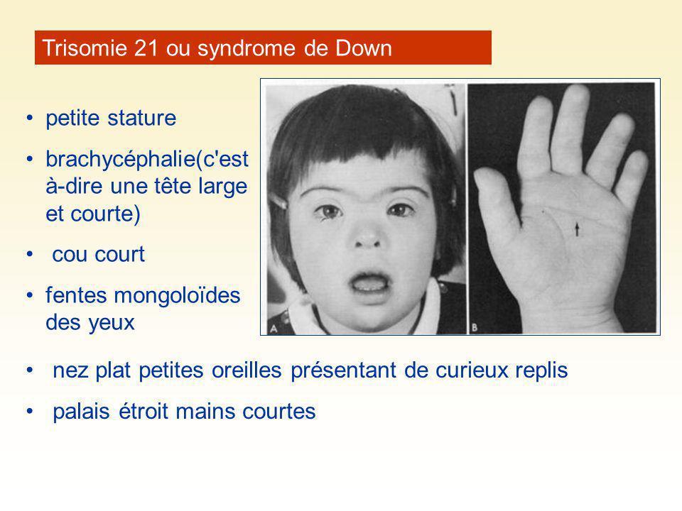 Trisomie 21 ou syndrome de Down