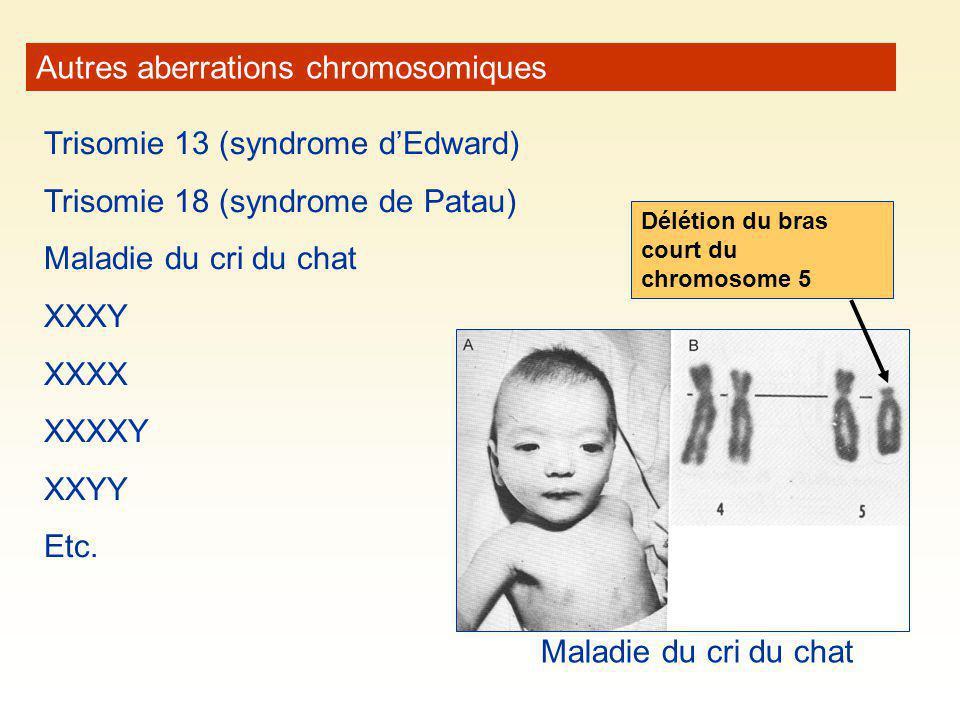 Autres aberrations chromosomiques