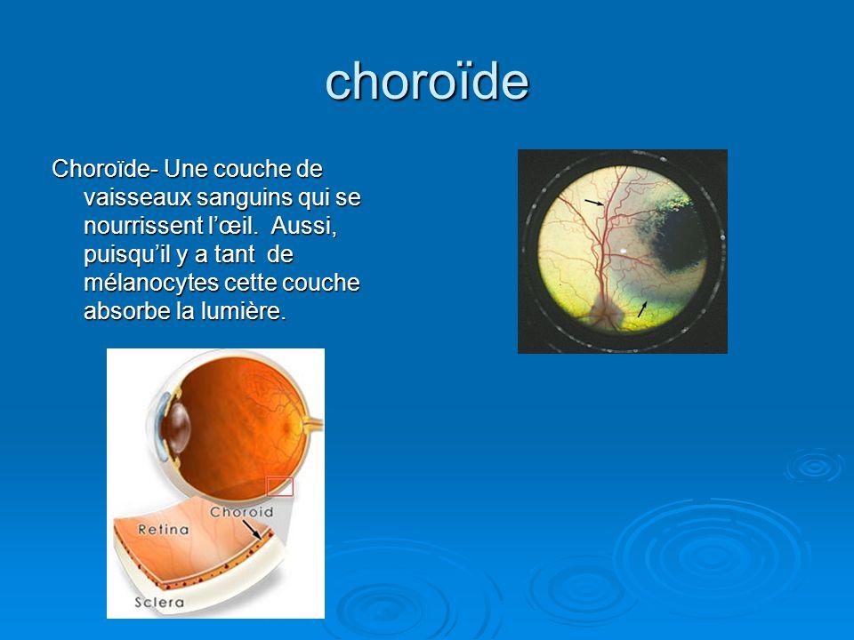 choroïde