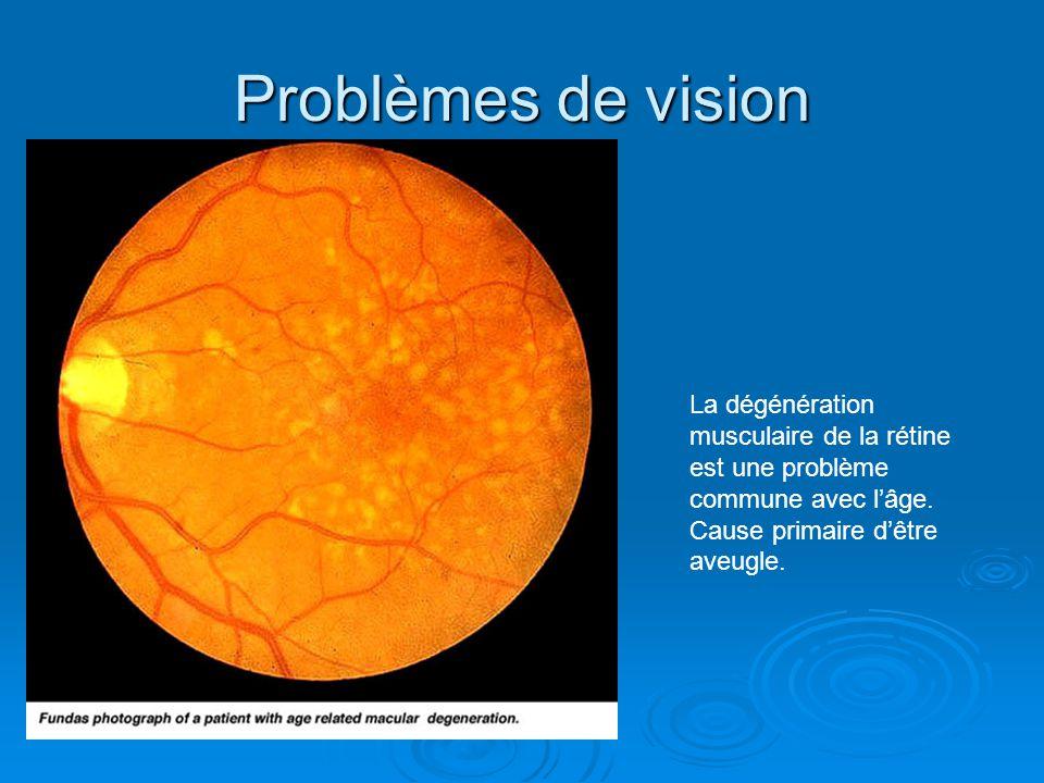 Problèmes de vision La dégénération musculaire de la rétine est une problème commune avec l'âge.