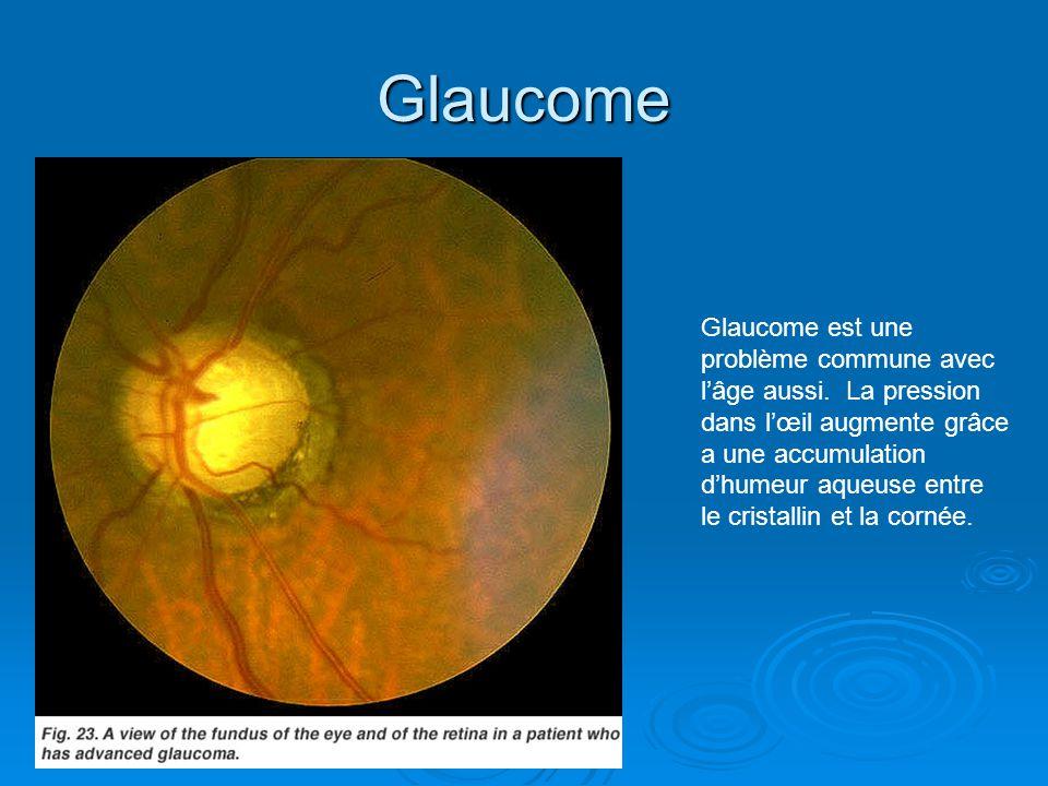 Glaucome