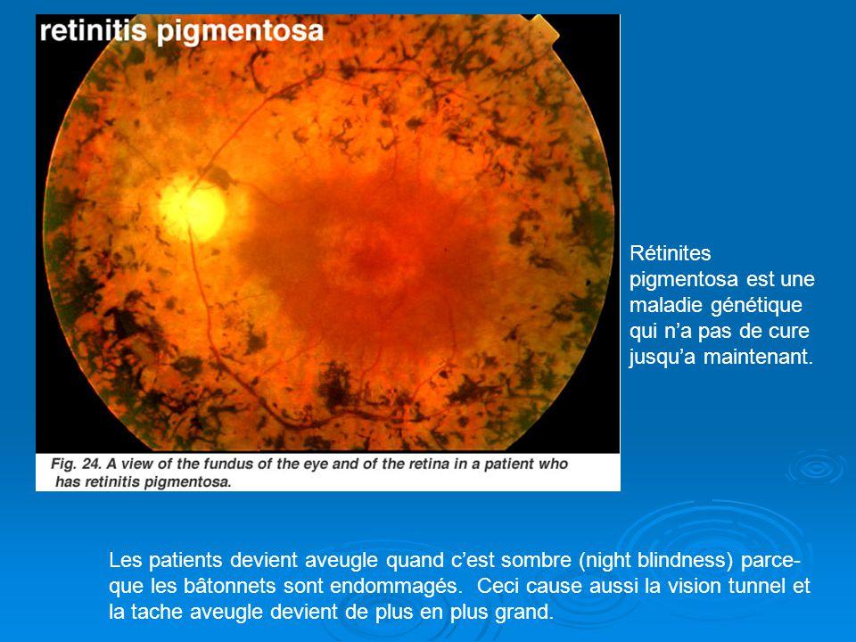 Rétinites pigmentosa est une maladie génétique qui n'a pas de cure jusqu'a maintenant.