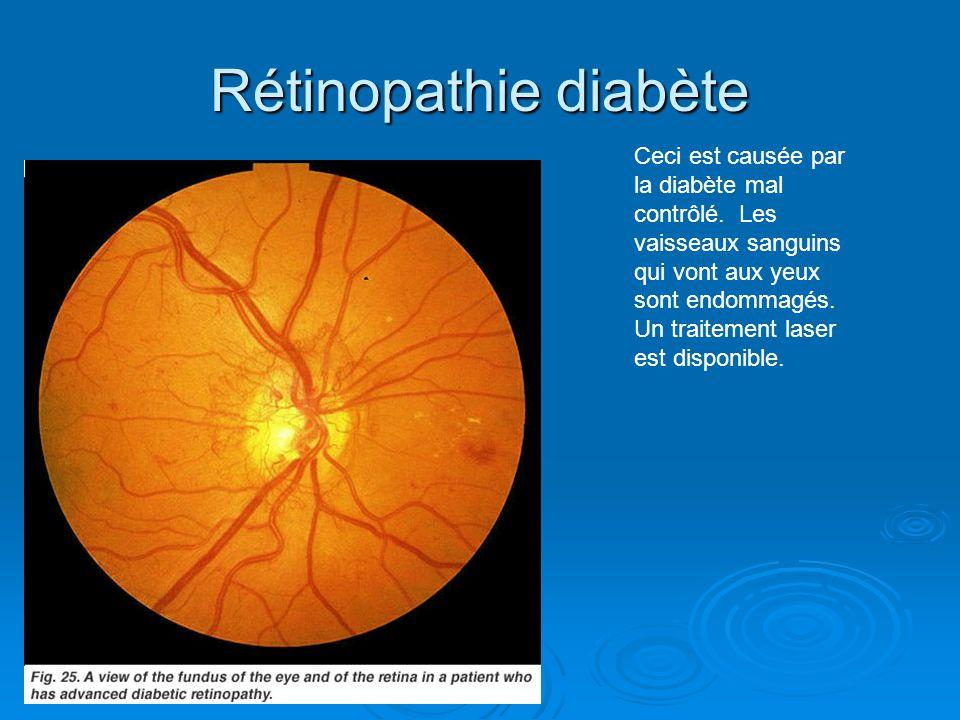 Rétinopathie diabète