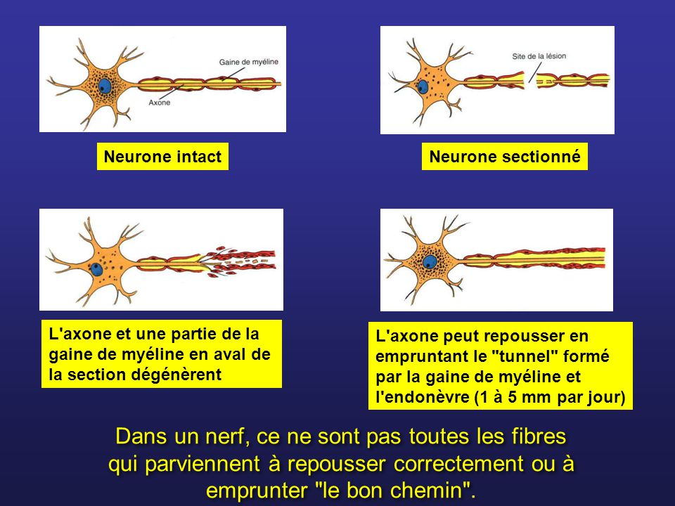 Neurone sectionné Neurone intact. L axone et une partie de la gaine de myéline en aval de la section dégénèrent.