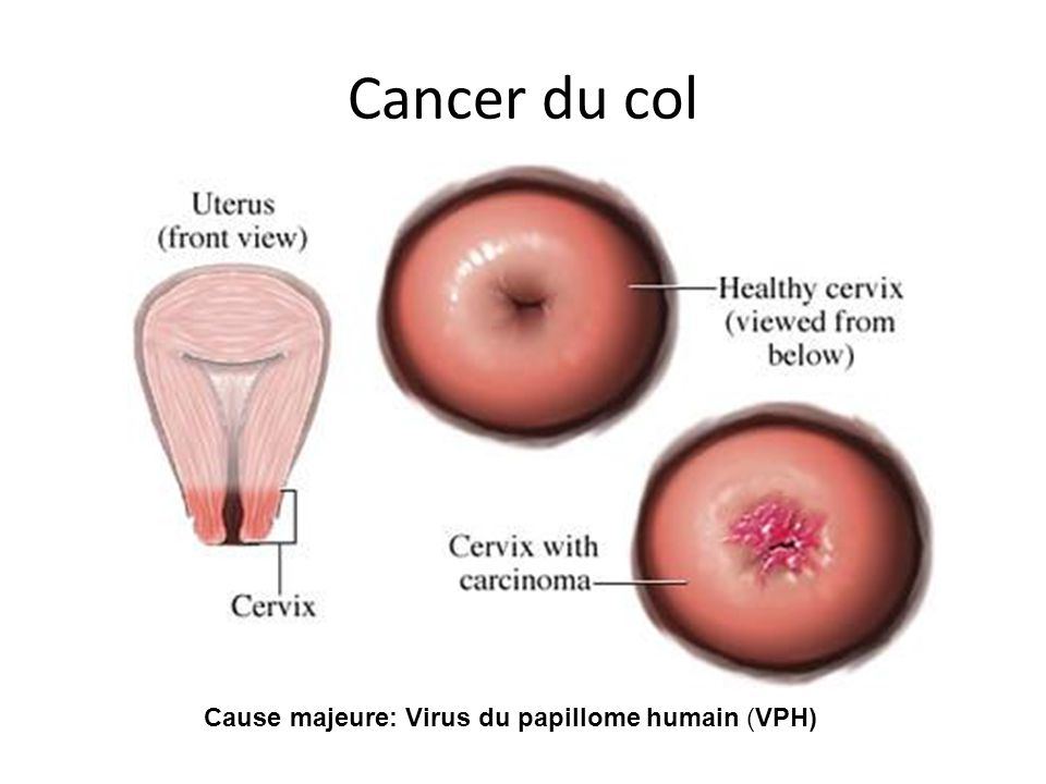 Cause majeure: Virus du papillome humain (VPH)