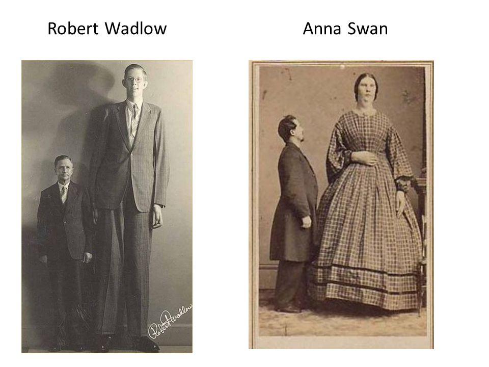 Robert Wadlow Anna Swan