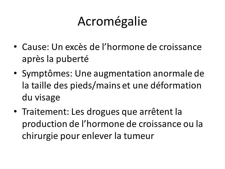 Acromégalie Cause: Un excès de l'hormone de croissance après la puberté.