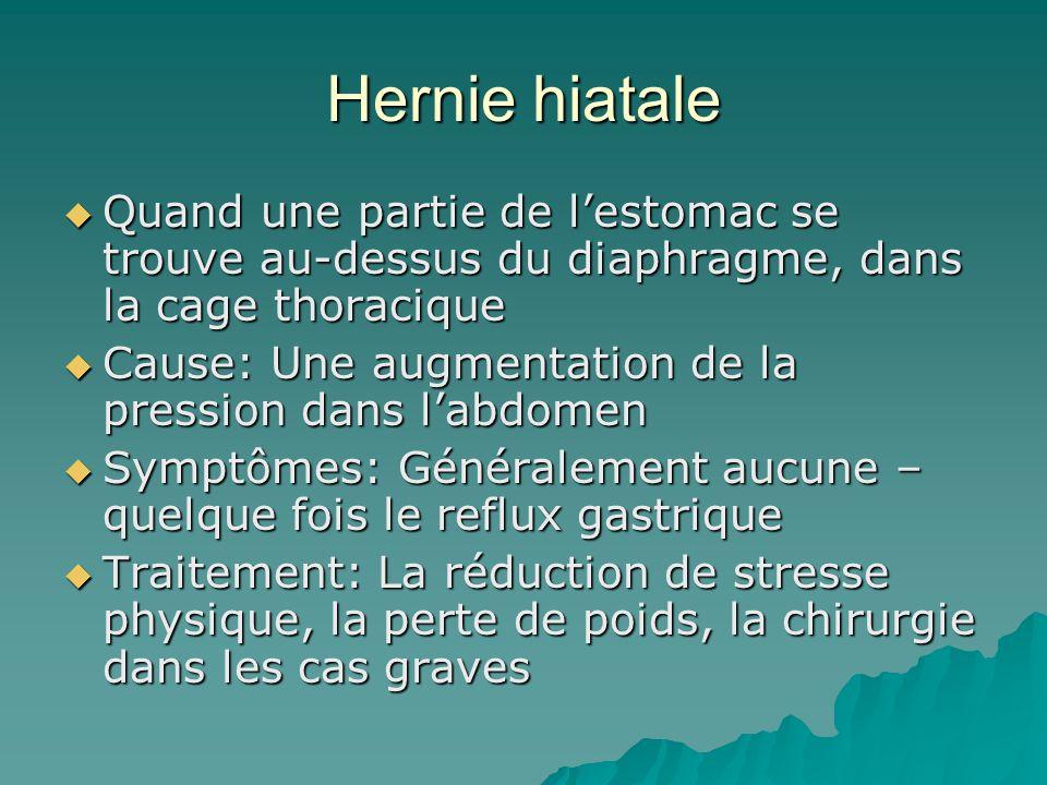 Hernie hiatale Quand une partie de l'estomac se trouve au-dessus du diaphragme, dans la cage thoracique.