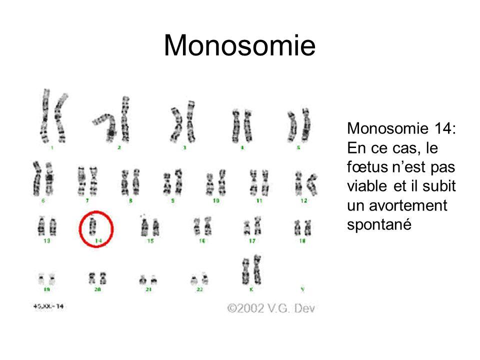 Monosomie Monosomie 14: En ce cas, le fœtus n'est pas viable et il subit un avortement spontané