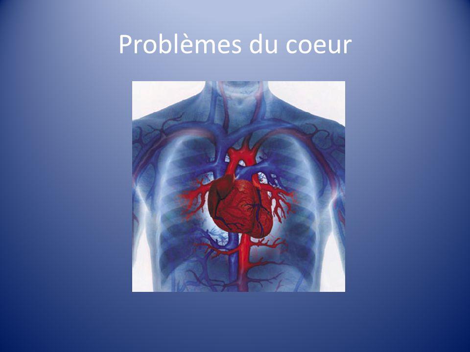 Problèmes du coeur