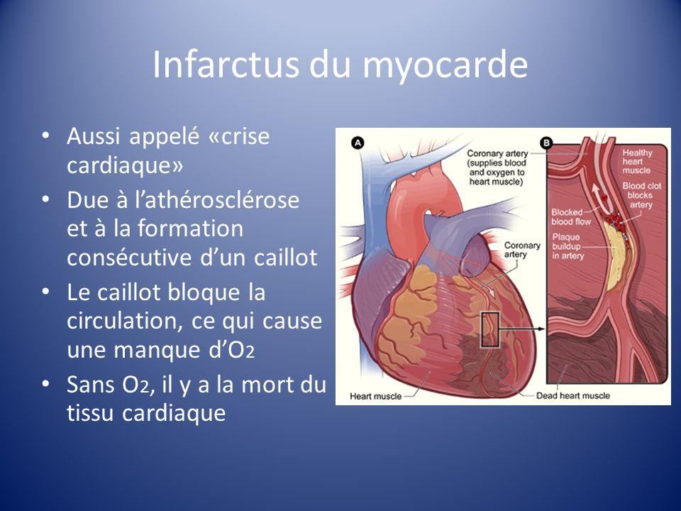 Infarctus du myocarde Aussi appelé «crise cardiaque»