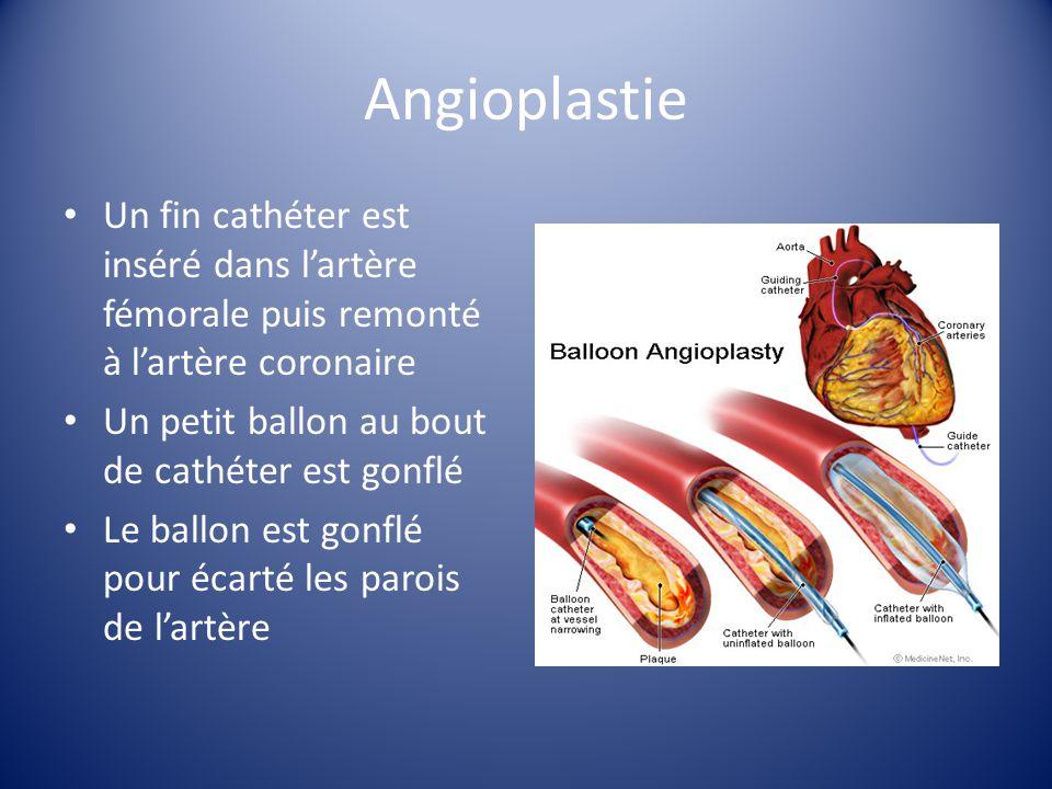Angioplastie Un fin cathéter est inséré dans l'artère fémorale puis remonté à l'artère coronaire. Un petit ballon au bout de cathéter est gonflé.