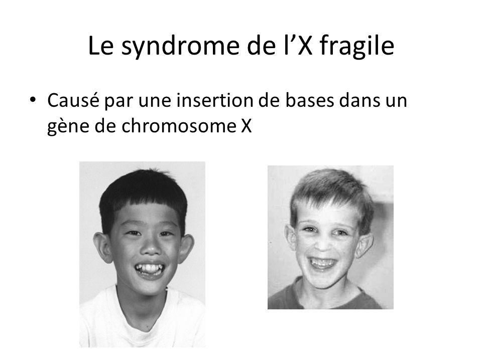 Le syndrome de l'X fragile