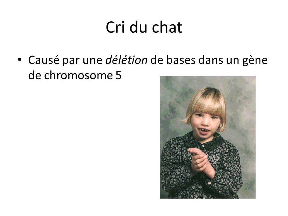 Cri du chat Causé par une délétion de bases dans un gène de chromosome 5