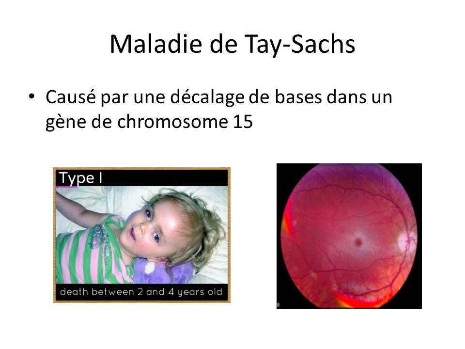 Maladie de Tay-Sachs Causé par une décalage de bases dans un gène de chromosome 15