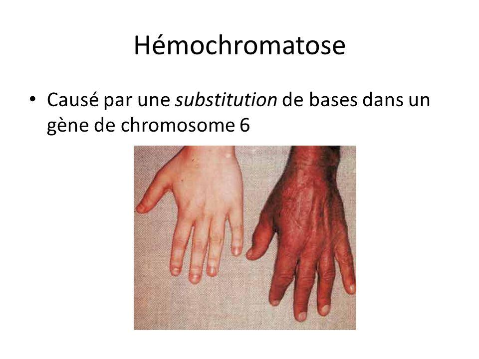 Hémochromatose Causé par une substitution de bases dans un gène de chromosome 6