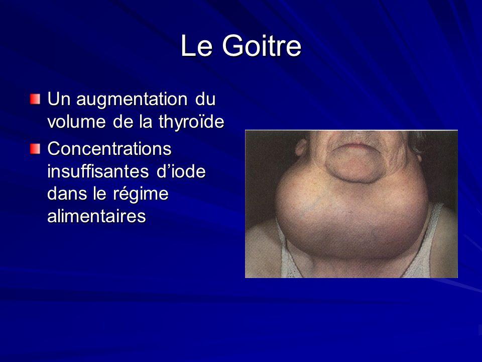 Le Goitre Un augmentation du volume de la thyroïde