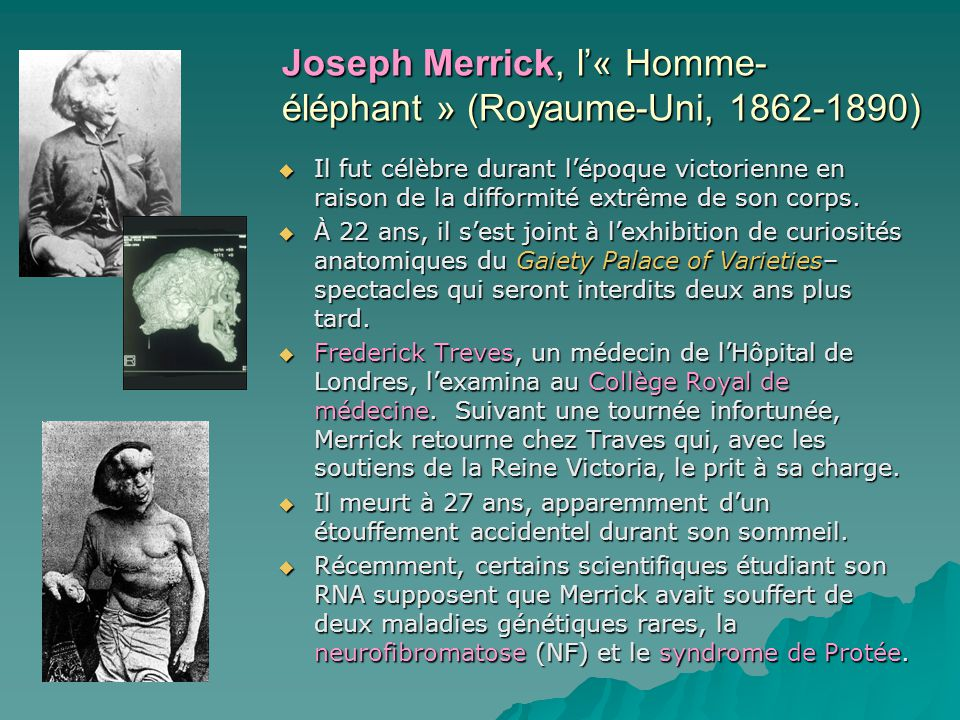 Joseph Merrick, l'« Homme-éléphant » (Royaume-Uni, 1862-1890)