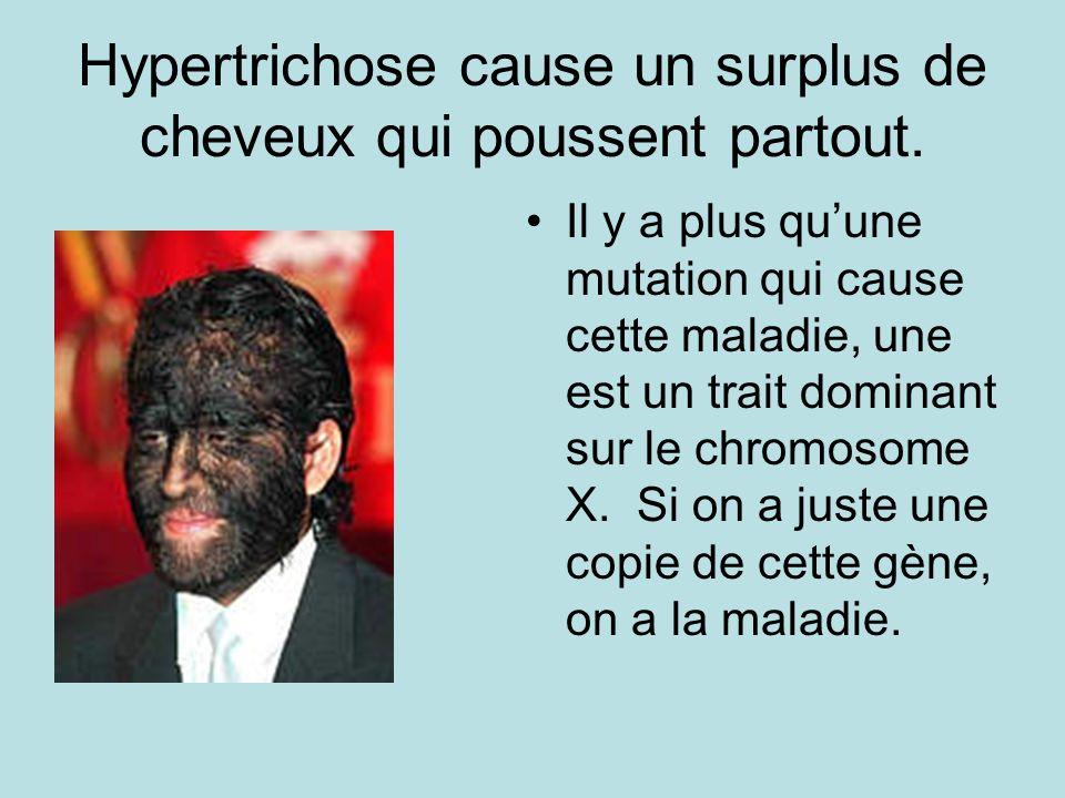 Hypertrichose cause un surplus de cheveux qui poussent partout.