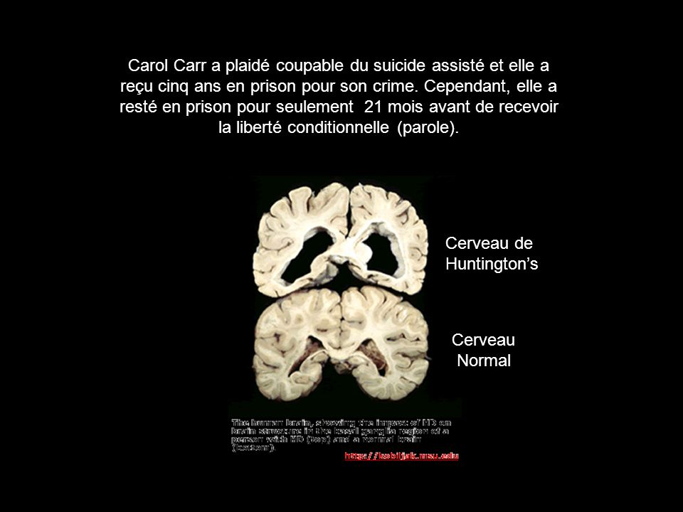 Carol Carr a plaidé coupable du suicide assisté et elle a reçu cinq ans en prison pour son crime. Cependant, elle a resté en prison pour seulement 21 mois avant de recevoir la liberté conditionnelle (parole).