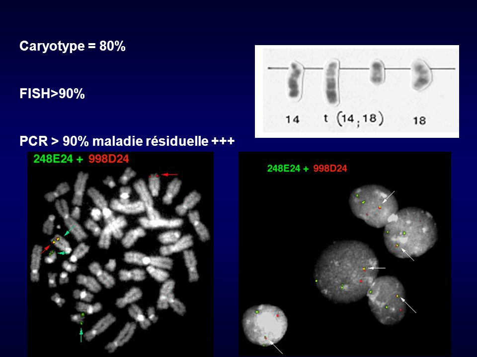 Caryotype = 80% FISH>90% PCR > 90% maladie résiduelle +++