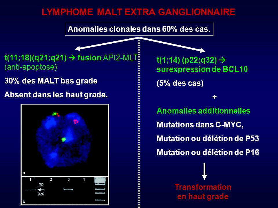 LYMPHOME MALT EXTRA GANGLIONNAIRE