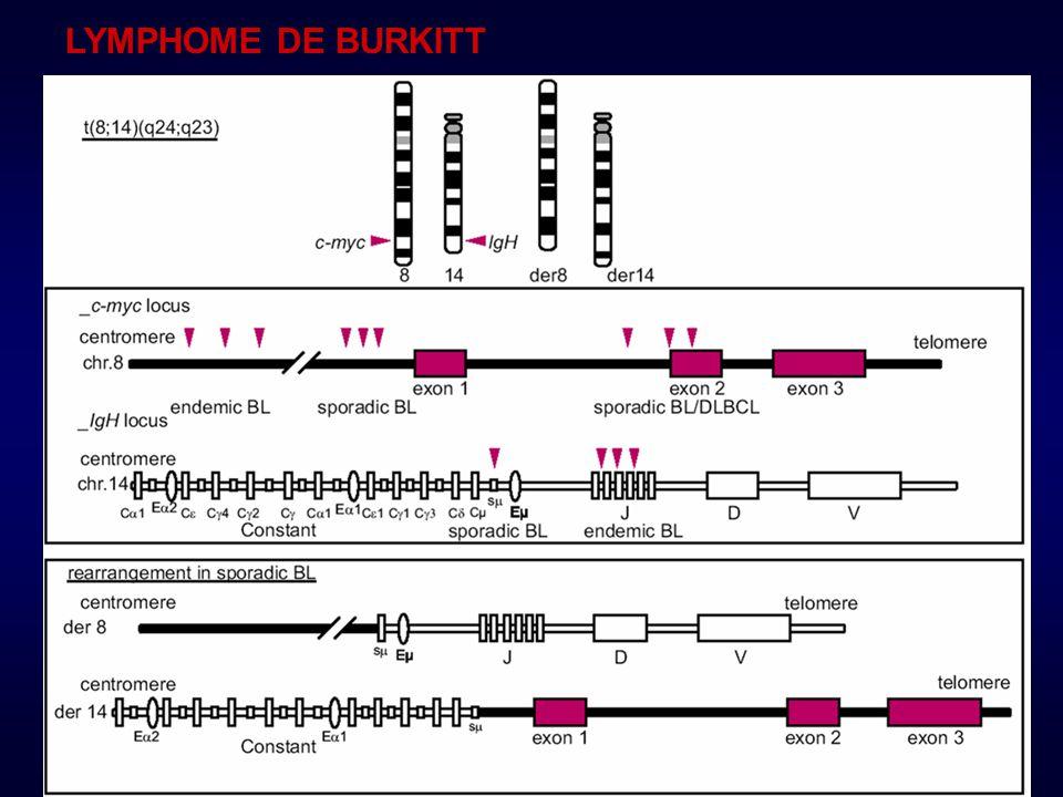 LYMPHOME DE BURKITT