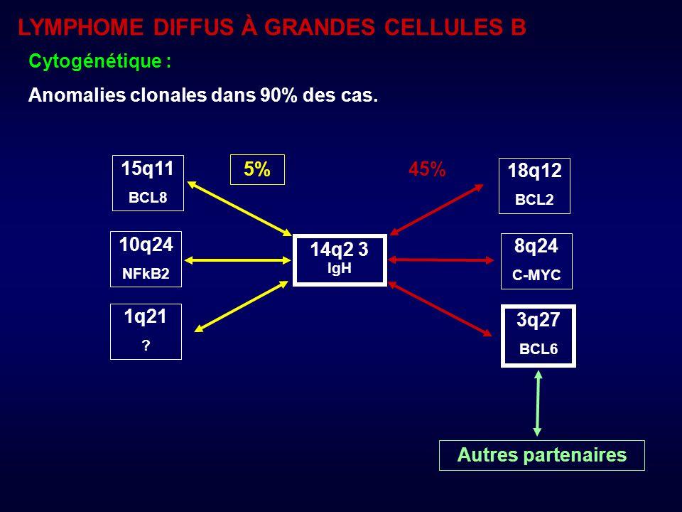 LYMPHOME DIFFUS À GRANDES CELLULES B