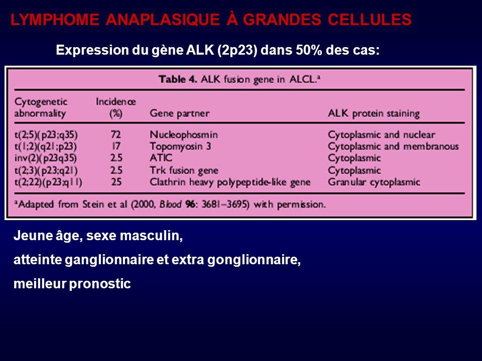 Expression du gène ALK (2p23) dans 50% des cas: