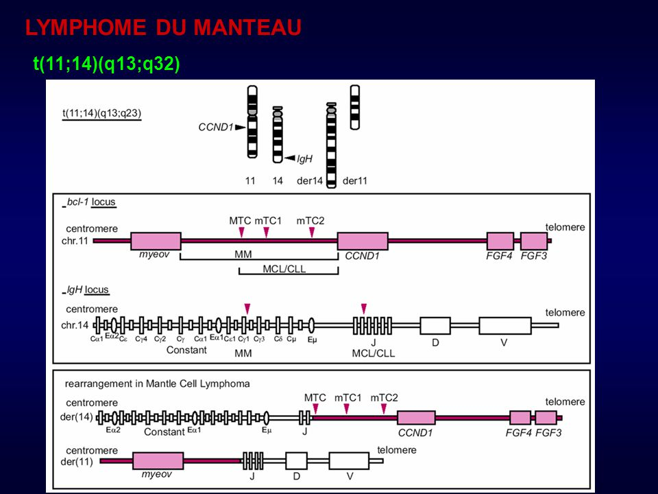 LYMPHOME DU MANTEAU t(11;14)(q13;q32)