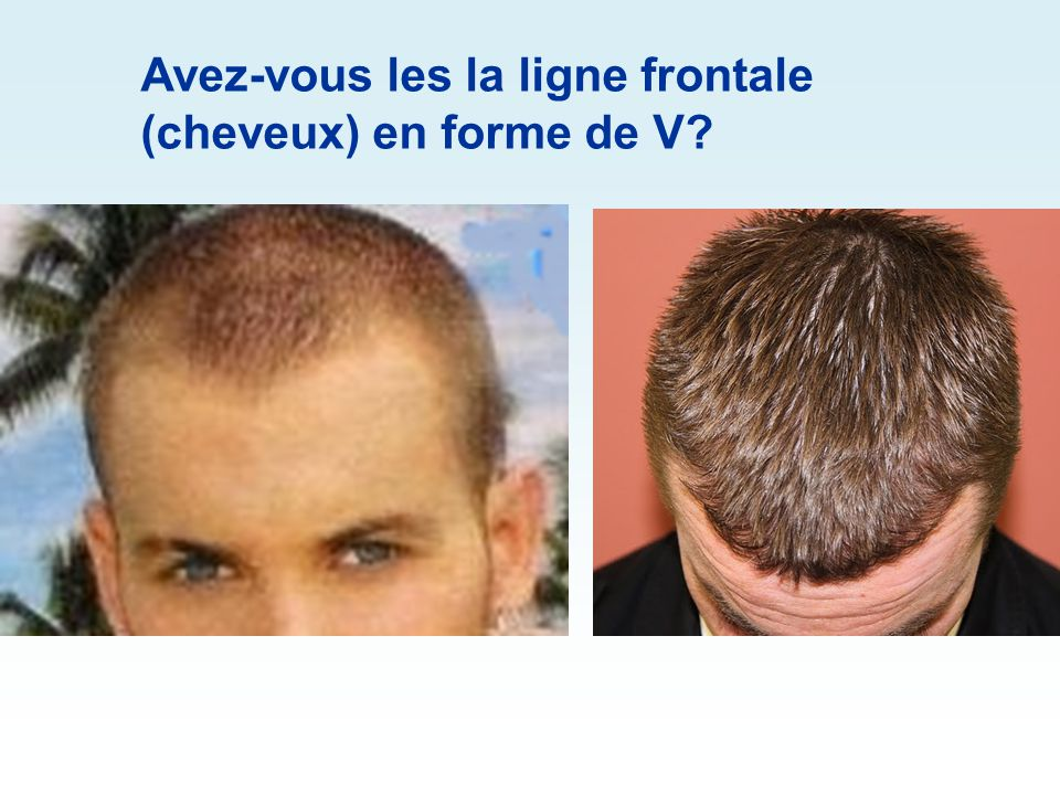 Avez-vous les la ligne frontale (cheveux) en forme de V
